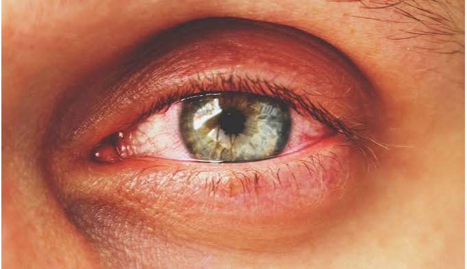 Konjonktivit kalıcı göz hasarı oluşturabiliyor