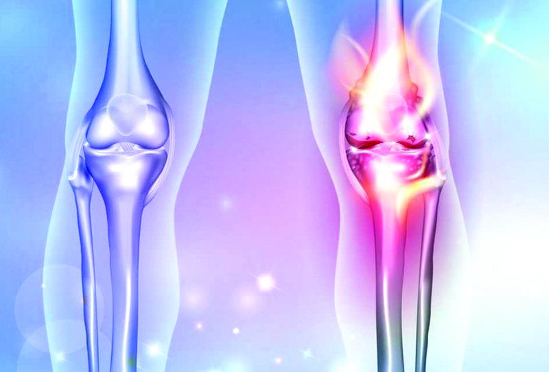 Kireçlenmelerde artroskopik cerrahi yöntemi ile başarılı sonuçlar alınıyor